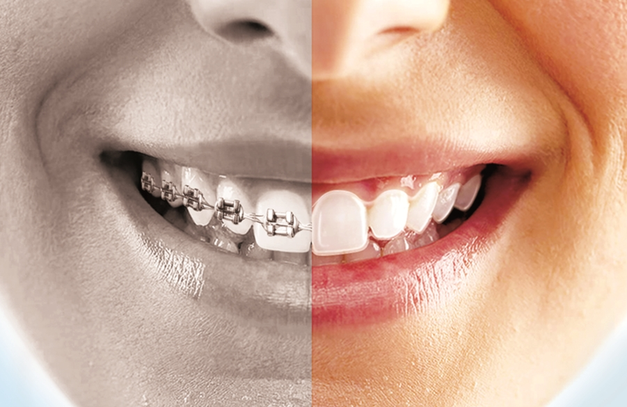 Image showing the difference between braces and SnapCorrect's clear aligners.